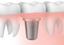 Implantes dentales: Dudas usuales ante el tratamiento